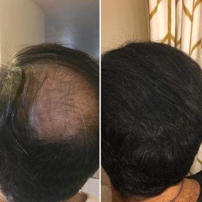 review-hair-building-fiber